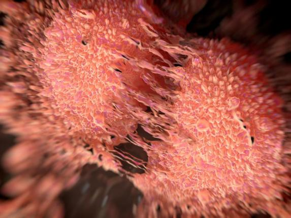 New-class-of-drug-may-treat-resistant-prostate-cancer